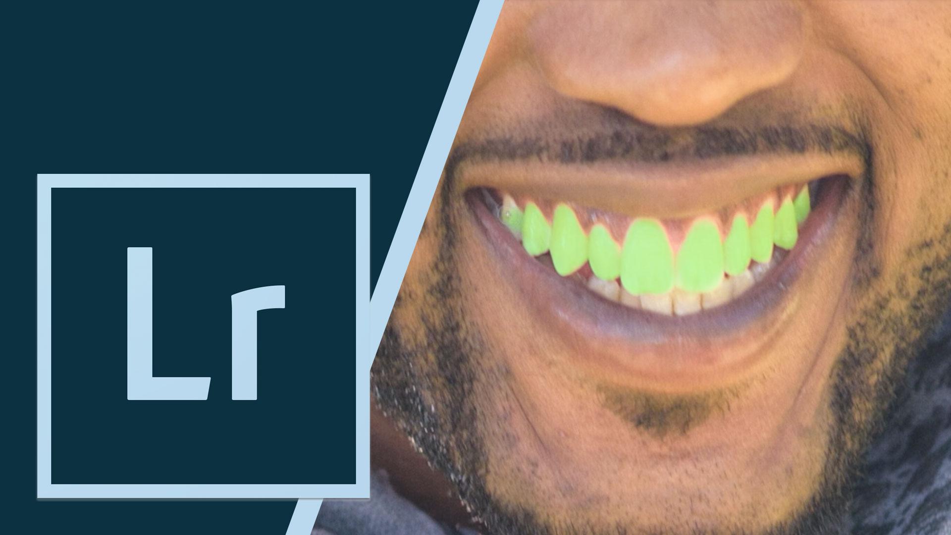 LRCCTips-whiten-teeth